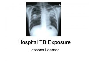 Hospital TB Exposure Lessons Learned A bit about