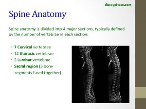 discogeluae com Spine Anatomy Spine anatomy is divided