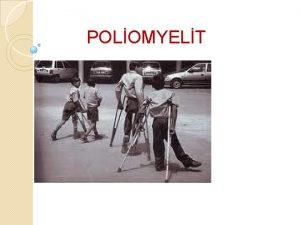 POLOMYELT Tanm Poliomyelit veya polio isimleri ile bilinen