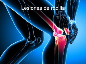 Lesiones de rodilla La rodilla est compuesta por