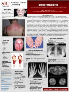 DERMATOMYOSITIS A rare inflammatory condition causing rashes on
