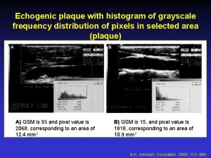 Echogenic plaque with histogram of grayscale frequency distribution