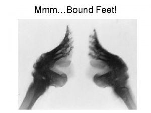 MmmBound Feet Why Bind Feet Marriageability mothers wanted