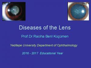 Diseases of the Lens Prof Dr Raciha Beril
