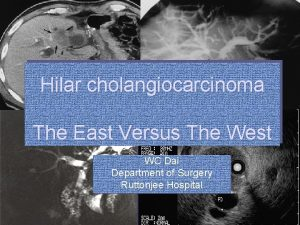 Hilar cholangiocarcinoma The East Versus The West WC