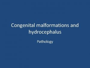 Congenital malformations and hydrocephalus Pathology Congenital malformations The