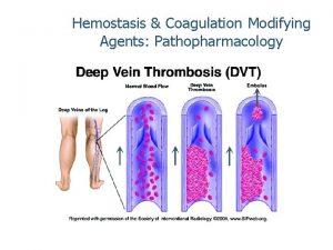Hemostasis Coagulation Modifying Agents Pathopharmacology Wanda Lovitz APRN