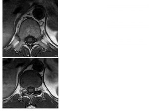 MRI of the Thoracic Spine Axial T 1