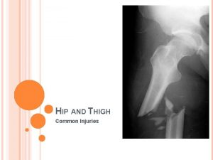 HIP AND THIGH Common Injuries STRAINS Quad Hip