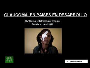 GLAUCOMA EN PAISES EN DESARROLLO XIV Curso Oftalmologa