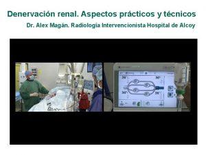 Denervacin renal Aspectos prcticos y tcnicos Dr Alex