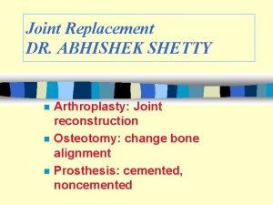 Joint Replacement DR ABHISHEK SHETTY n n n