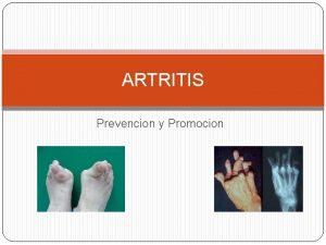 ARTRITIS Prevencion y Promocion Prevencin Artritis El diagnstico