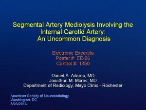 Segmental Artery Mediolysis Involving the Internal Carotid Artery
