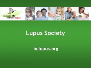 Lupus Society bclupus org What is Lupus It