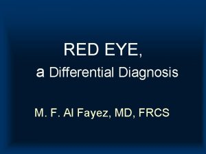 RED EYE a Differential Diagnosis M F Al