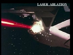 LASER ABLATION 1 Laser Ablation ICPMS CETAC LSX