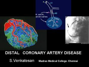 DISTAL CORONARY ARTERY DISEASE S Venkatesan Madras Medical