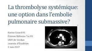 La thrombolyse systmique une option dans lembolie pulmonaire