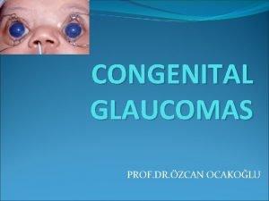 CONGENITAL GLAUCOMAS PROF DR ZCAN OCAKOLU Congenital Glaucoma