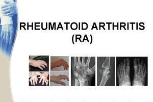 RHEUMATOID ARTHRITIS RA OVERVIEW Definition Immunopathogenesis Clinical findings