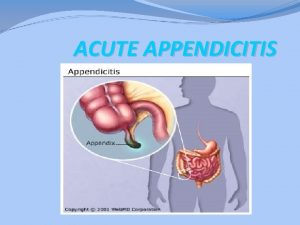 ACUTE APPENDICITIS ACUTE APPENDICITIS Appendicitis is defined as