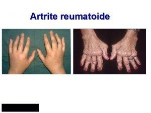 Artrite reumatoide Artrite reumatoide Malattia infiammatoria cronica sistemica