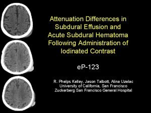 Attenuation Differences in Subdural Effusion and Acute Subdural