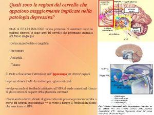 Quali sono le regioni del cervello che appaiono