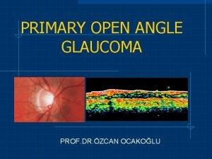 PRIMARY OPEN ANGLE GLAUCOMA PROF DR ZCAN OCAKOLU