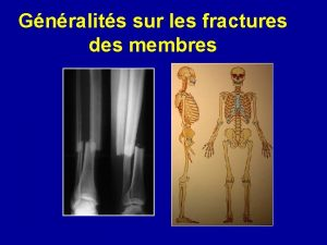 Gnralits sur les fractures des membres DEFINITION CLASSIFICATION