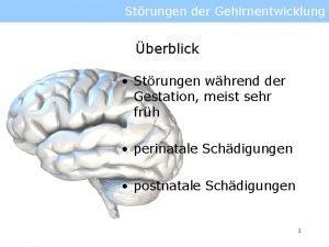 Strungen der Gehirnentwicklung berblick Strungen whrend der Gestation
