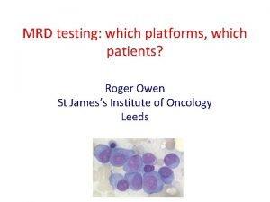 MRD testing which platforms which patients Roger Owen