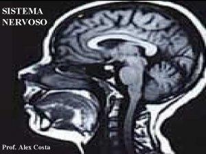 SISTEMA NERVOSO Prof Alex Costa O sistema nervoso