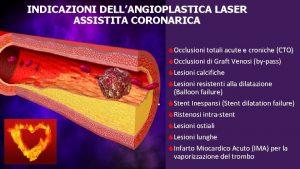 INDICAZIONI DELLANGIOPLASTICA LASER ASSISTITA CORONARICA Occlusioni totali acute