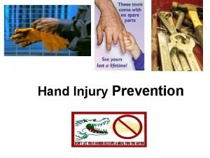 Hand Injury Prevention Presentation Elements Hand Hazards Potential