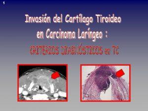 1 2 GLOTIS Supraglotis Subglotis T 1 Limitado