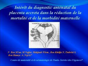 Intrt du diagnostic antnatal du placenta accreta dans