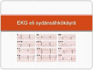 EKG eli sydnshkkyr Ekg eli elektrokardiografia Tarkoitetaan sydmen