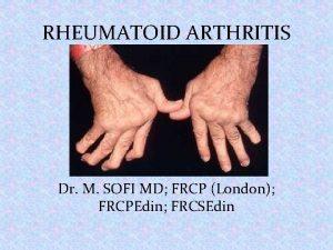 RHEUMATOID ARTHRITIS Dr M SOFI MD FRCP London