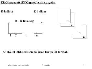 EKG kapuzott ECG gated szv vizsglat R hullm