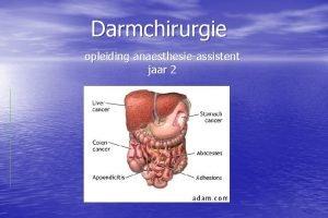 Darmchirurgie opleiding anaesthesieassistent jaar 2 Inhoud Preoperatieve zorg