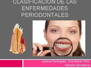 CLASIFICACIN DE LAS ENFERMEDADES PERIODONTALES Jahaira Rodrguez Ana