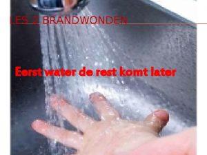 LES 2 BRANDWONDEN Eerst water de rest komt