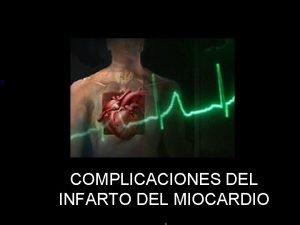 COMPLICACIONES DEL INFARTO DEL MIOCARDIO COMPLICACIONES ELECTRICAS Complicaciones