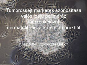Tumorssejt markerek azonostsa vals idej polimerz lncreakcival dermatofibroszarkoma