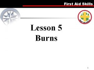 First Aid Skills Lesson 5 Burns 1 First