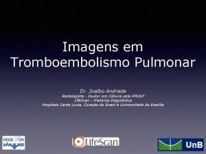 Imagens em Tromboembolismo Pulmonar Dr Joalbo Andrade Radiologista