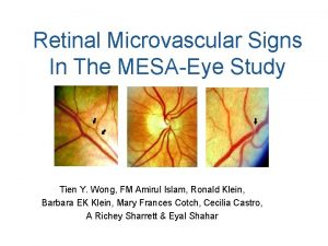 Retinal Microvascular Signs In The MESAEye Study Tien
