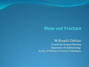 Blowout Fracture M Rinaldi Dahlan Cicendo Eye Hospital